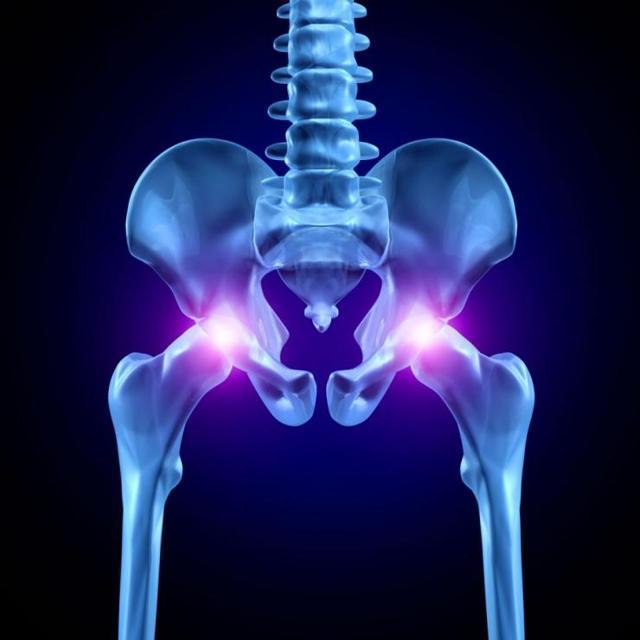 Рентген тазобедренного сустава: подготовка и проведение