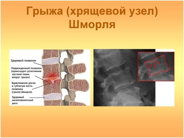 Грыжа Шморля - комплекс упражнений для лечения