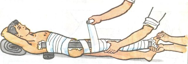 Вывих бедра — симптомы, первая помощь и лечение