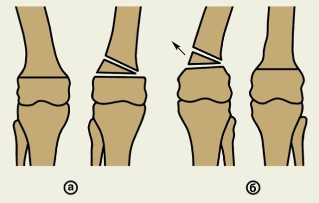 Корригирующая остеотомия: типы и последствия операции