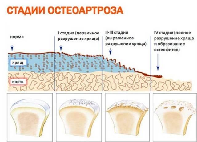 Гимнастика при остеохондрозе 2 степени поясничного отдела позвоночника