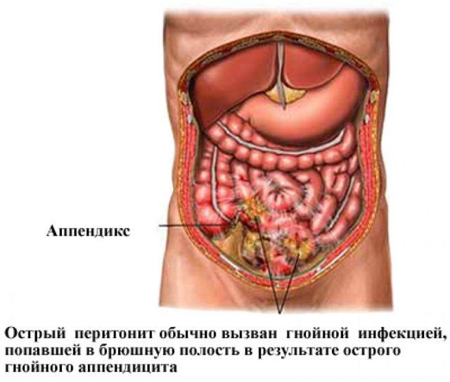 Боль в спине при вдохе: причины и лечебные меры
