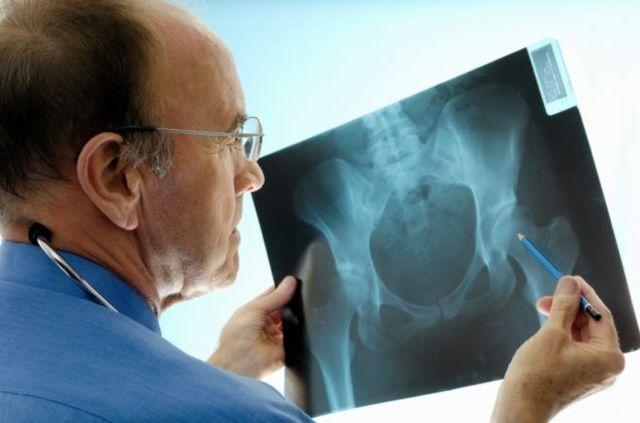 Чрезвертельный перелом бедра: симптомы, лечение и реабилитация