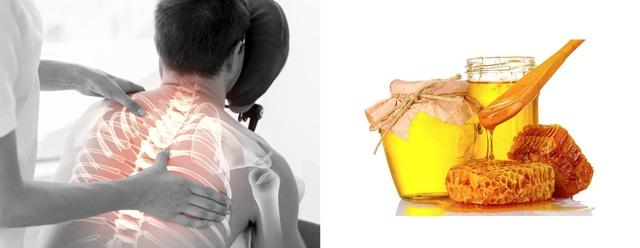 Медовый массаж спины при остеохондрозе