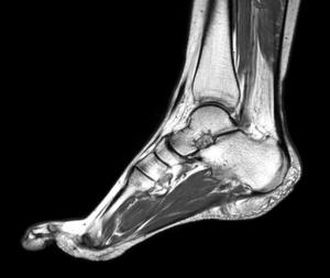 МРТ стопы: что показывает и как проводится диагностика