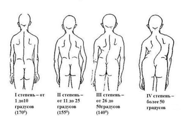 Сколиоз 1 степени: виды, симптомы, фото, лечение