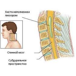 Гидромиелия: лечение, симптомы и диагностика