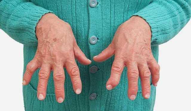 Воспаление связок кисти: симптомы, формы, лечение