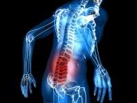 Хондроз грудного отдела позвоночника: симптомы, лечение и причины