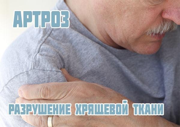 Артроз акромиально-ключичного сустава — обзор способов лечения