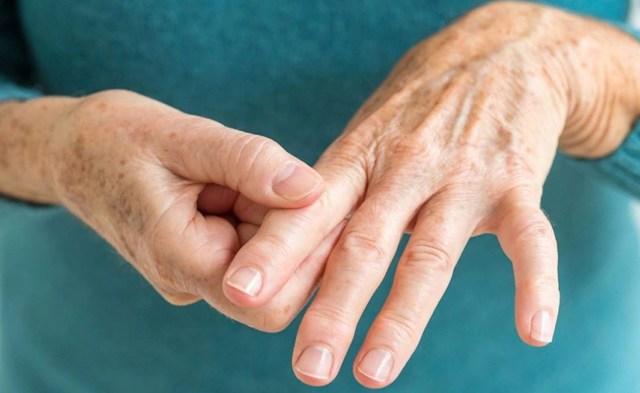 Мелореостоз — симптомы, диагностика и лечение