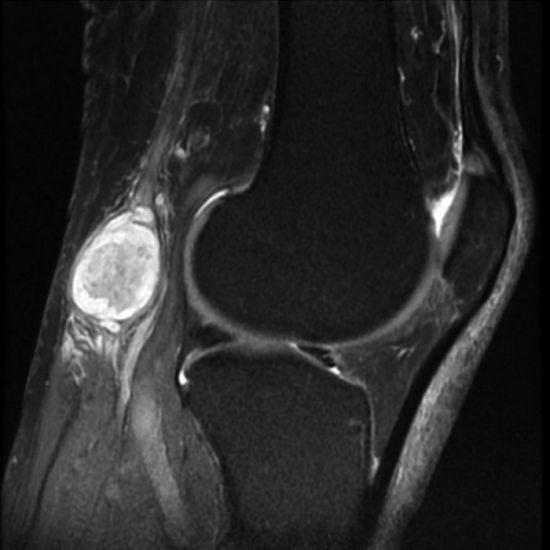 Киста Бейкера коленного сустава: размеры для проведения операции