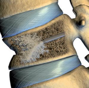 Кифопластика позвоночника: показания, проведение и реабилитация