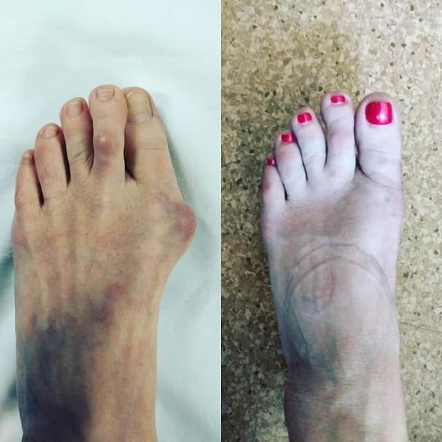 Лечение косточки на большом пальце ноги в домашних условиях