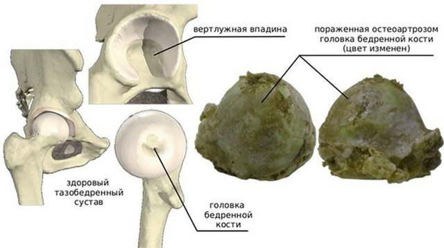Защемление нерва пахового канала: симптомы, лечение