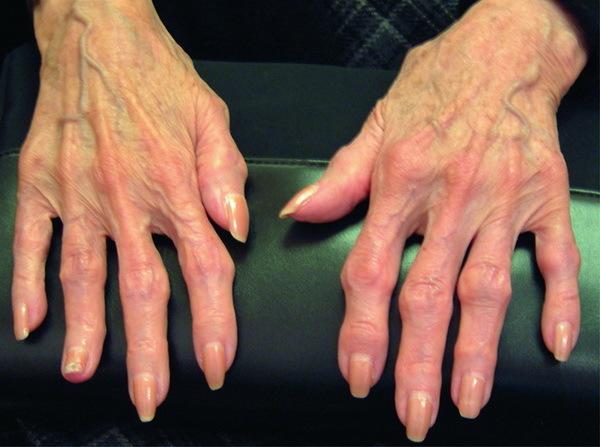 Генерализованный остеоартроз что это такое и как лечить