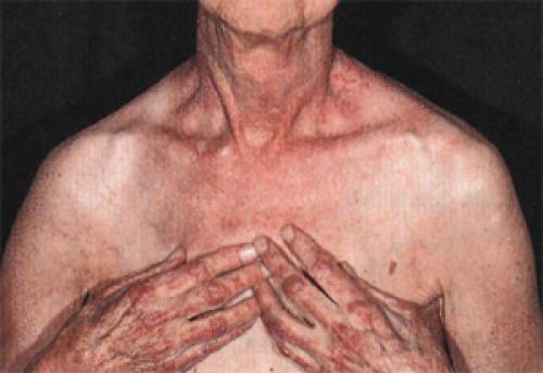 Миозит грудной клетки — причины, симптомы и лечение