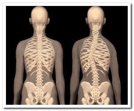 Боль в грудном отделе позвоночника: причины и лечение
