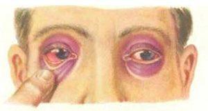 Перелом основания черепа - симптомы, первая помощь и лечение