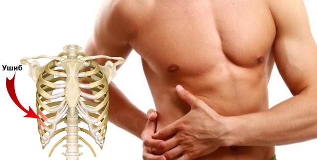 Переломы и ушибы ребер: признаки и симптомы травм, неотложная помощь, методика лечения