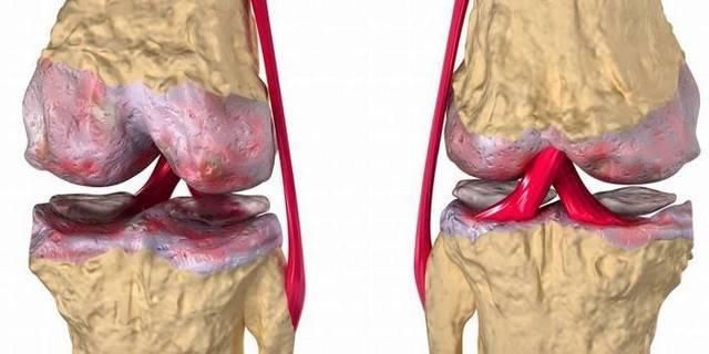 Субхондральный остеосклероз суставных поверхностей