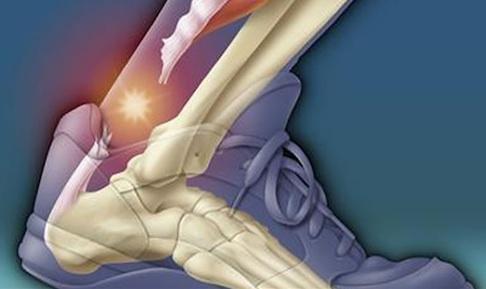 Разрыв ахиллова сухожилия: причины, лечение, симптомы