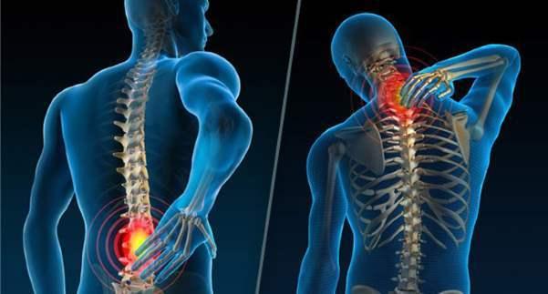 Хондроз и остеохондроз — в чем разница между болезнями