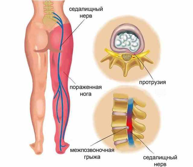 МРТ копчика: подготовка и проведение диагностики