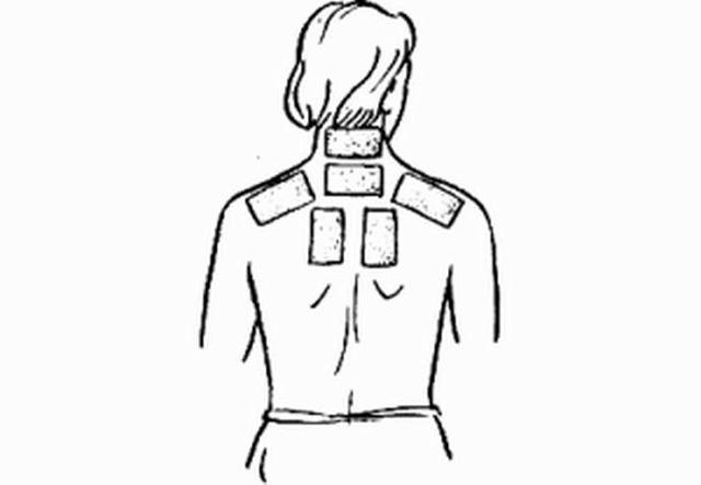 Горчичники при остеохондрозе шейного отдела