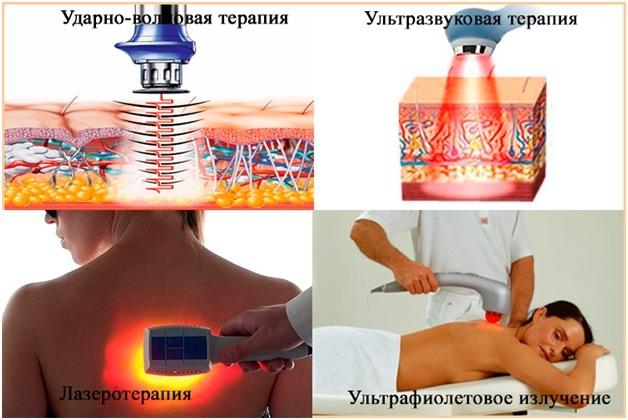 Ударно-волновая терапия для лечения грыжи позвоночника
