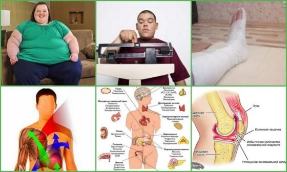 Причины развития полиартроза, его виды и лечение