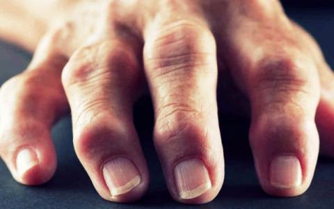 На пальцах рук появились шишки: как выглядят, фото. Причины появления шишек на пальцах рук. Лечение шишек на пальцах рук: медикаментозные и народные средства
