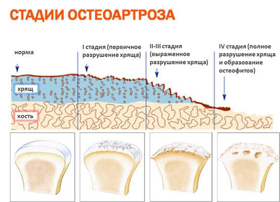 Купить Версан Флюид протез синовиальной жидкости шприц 2.5мл №1 в аптеках города Москва с доставкой, сравнение цен – АптекаМос
