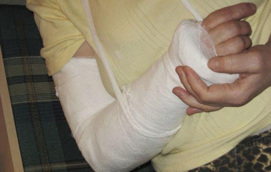 Ноющая боль в костях, суставах и мышцах рук