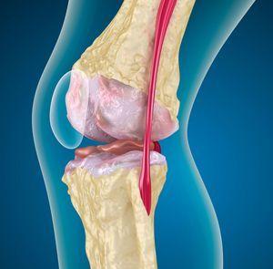 Лучшие хондропротекторы при артрозе коленного сустава