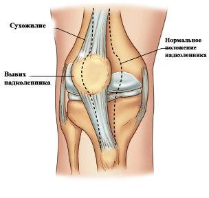 У ребенка болят колени: причины и способы лечения