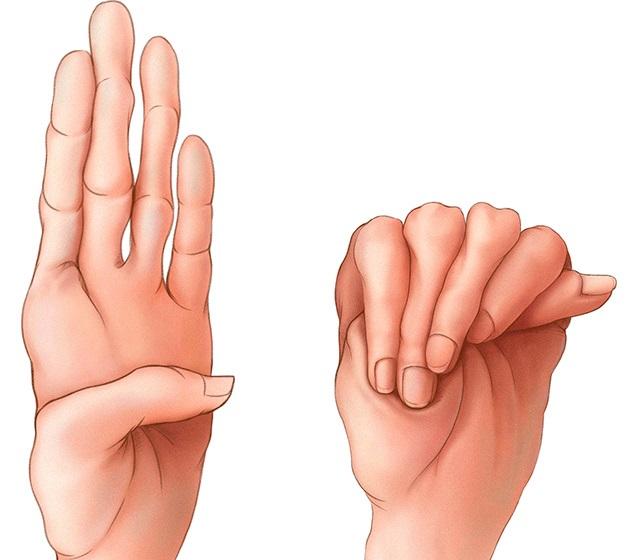 Дисплазия соединительной ткани у взрослых симптомы