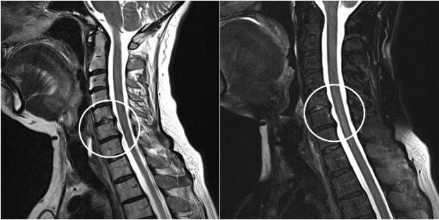 Мануальная терапия при остеохондрозе шейного отдела: техника проведения