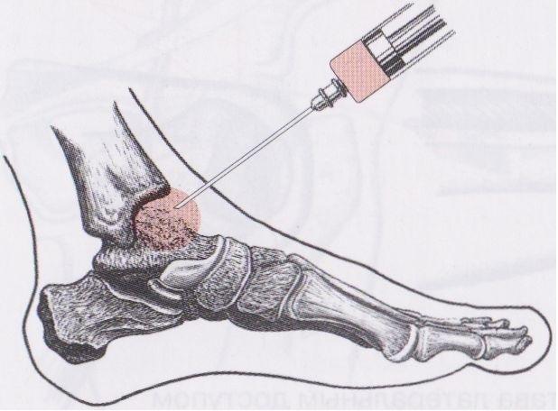 Киста голеностопного сустава: симптомы и лечение