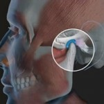 Воспаление челюстного сустава: причины, симптомы и лечение