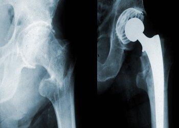 Остеопороз тазобедренного сустава — симптомы и лечение