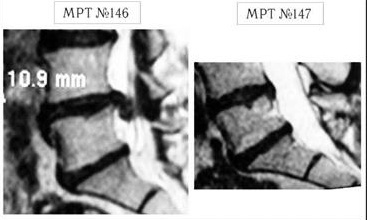 Секвестрированная грыжа диска l5 s1: лечение без операции