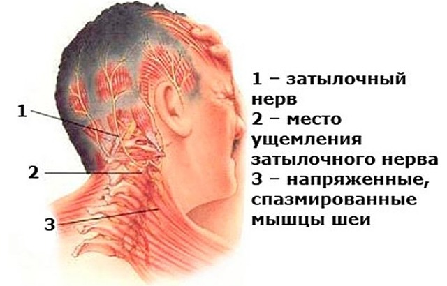 Как болит голова при шейном остеохондрозе