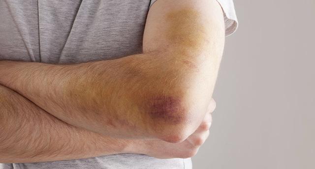 Воспаление локтевого сустава: причины, симптомы и лечение