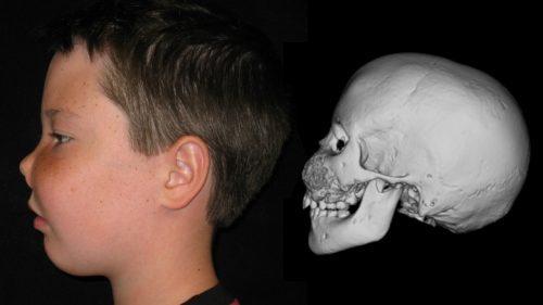 Фиброзная дисплазия костей черепа: симптомы и лечение