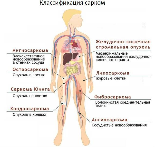 Саркома Юинга — причины, симптомы, лечение и диагностика