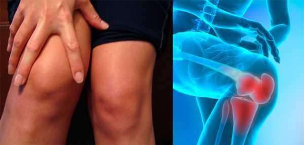 Гирудотерапия при артрозе и артрите коленного сустава