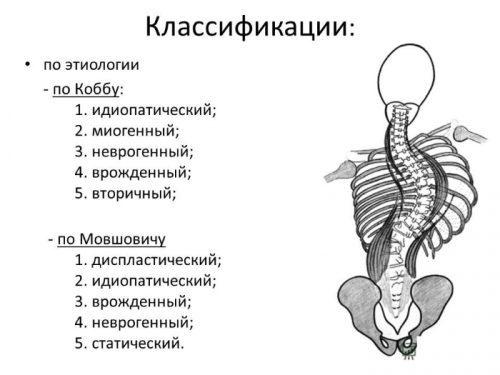 Грудопоясничный сколиоз: степени, симптомы, лечение