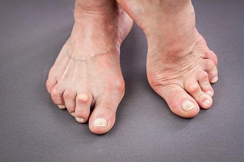 Гигрома стопы: фото, причины, симптомы и лечение