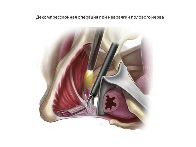 Причины и лечение нерва в паху при ущемлении. Защемление нерва в тазобедренном суставе